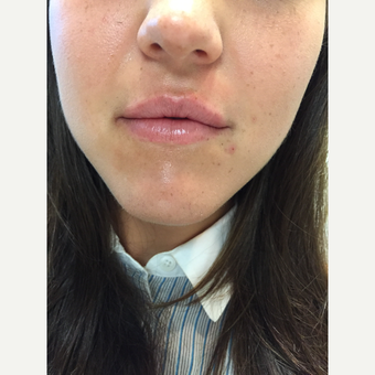 25-34 year old woman treated with Lip Augmentation after 3589962
