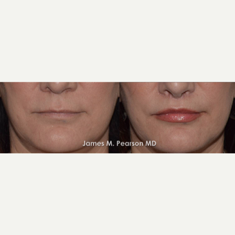 45-54 year old woman treated with Lip Lift before 3117329