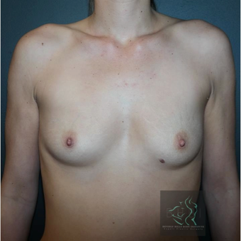 35-44 year old woman treated with Breast Augmentation before 3109824