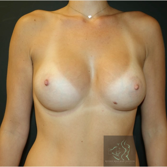 35-44 year old woman treated with Breast Augmentation after 3109824