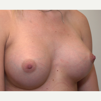 Breast Augmentation after 3108846