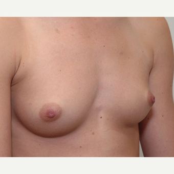 Breast Augmentation before 3108846