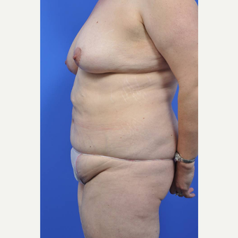 35-44 year old woman treated with Body Lift before 3442385
