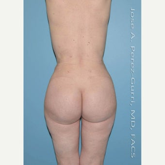 45-54 year old woman treated with Brazilian Butt Lift after 2420566