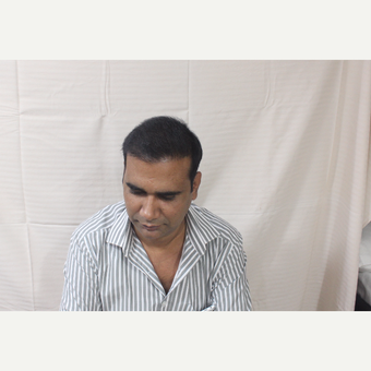 25-34 year old man treated with Hair Transplant after 3211926