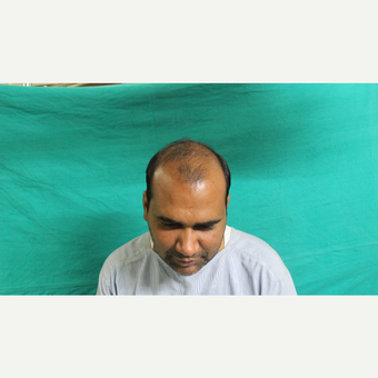 25-34 year old man treated with Hair Transplant before 3211926