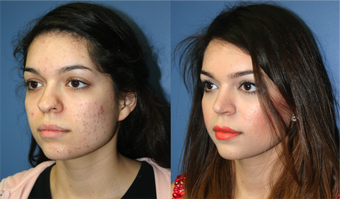 22 Year Old Female, primary Rhinoplasty after 966053