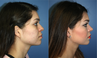 22 Year Old Female, primary Rhinoplasty 966053