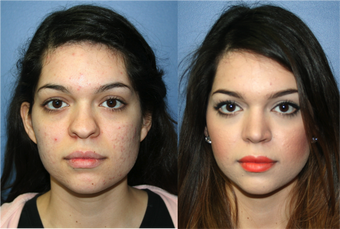 22 Year Old Female, primary Rhinoplasty before 966053
