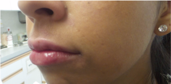 25-34 year old woman treated with Lip Augmentation - Juvederm Ultra 3191298