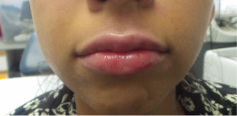 25-34 year old woman treated with Lip Augmentation - Juvederm Ultra after 3191298