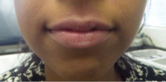 25-34 year old woman treated with Lip Augmentation - Juvederm Ultra before 3191298