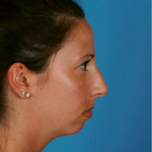 18-24 year old woman treated with Chin Surgery before 3458146