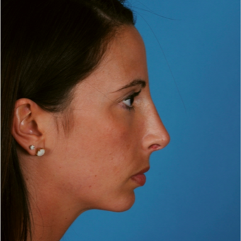 18-24 year old woman treated with Chin Surgery after 3458146