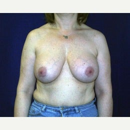 55-64 year old man treated with Breast Implant Removal with breast lift before 2143056