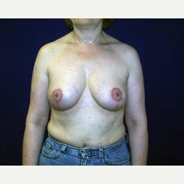 55-64 year old man treated with Breast Implant Removal with breast lift after 2143056