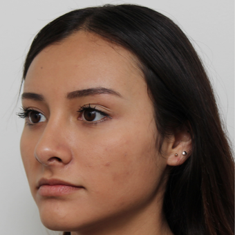 17 or under year old woman treated with Rhinoplasty after 3418790