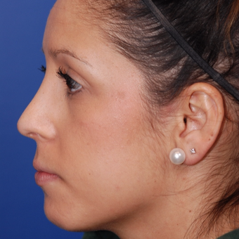 25-34 year old woman treated with Rhinoplasty after 3624299