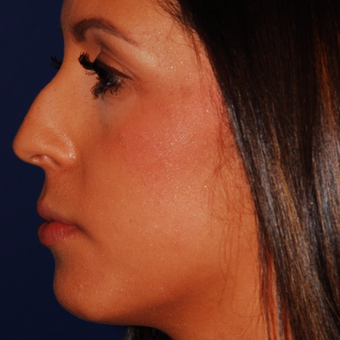 25-34 year old woman treated with Rhinoplasty before 3624299