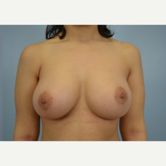 18-24 year old woman treated with Breast Fat Transfer after 3432043