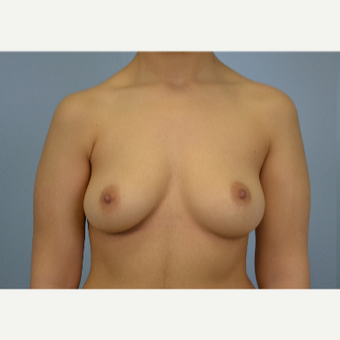 18-24 year old woman treated with Breast Fat Transfer before 3432043