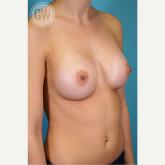 25-34 year old woman treated with Breast Implants after 3468730