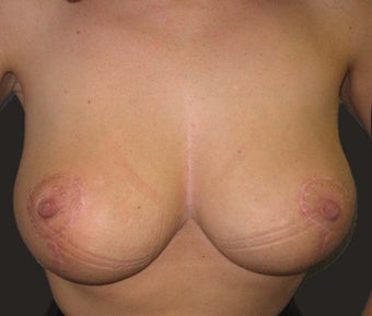 Breast Reduction after 1218220