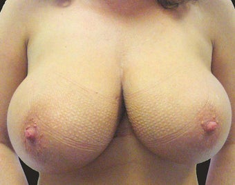 Breast Reduction before 1218220