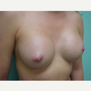 35-44 year old woman treated with Breast Augmentation after 3168089