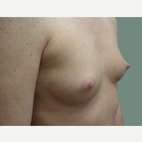 35-44 year old woman treated with Breast Augmentation before 3168089