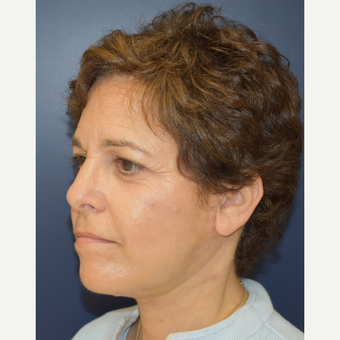 55-64 year old woman treated with Lower Face Lift after 3460954
