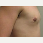 17 or under year old man treated with Breast Reduction after 3093511