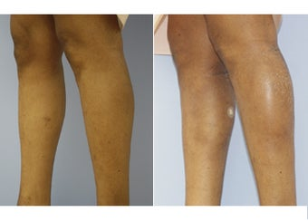35 Year Old Female - Calf Augmentation after 1229014