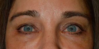 Middle age female, with sunken hollow eyes, who received upper eyelid filler injection. after 2479746