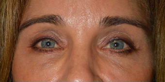 Middle age female, with sunken hollow eyes, who received upper eyelid filler injection. before 2479746
