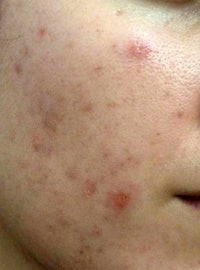Fraxel laser for acne scars before 1135342