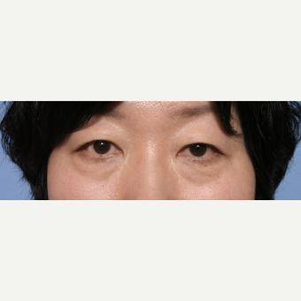 45-54 year old woman treated with Eye Bags Treatment before 3135639