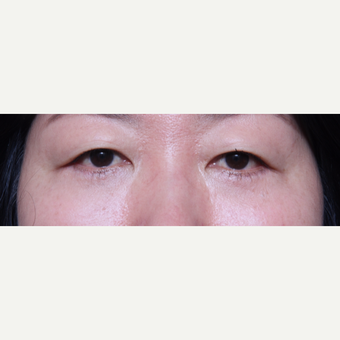 45-54 year old woman treated with Eye Bags Treatment after 3135639