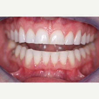 35-44 year old woman treated with Porcelain Veneers before 1833267