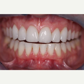 35-44 year old woman treated with Porcelain Veneers after 1833267