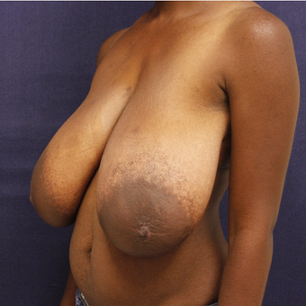 25-34 year old woman treated with Breast Reduction before 3339381