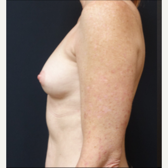 35-44 year old woman treated with Breast Augmentation before 3529791