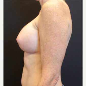35-44 year old woman treated with Breast Augmentation after 3529791