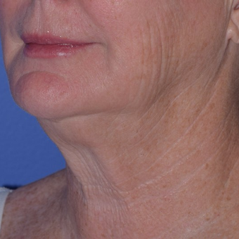 65-74 year old woman treated with Smart Lipo for Loose Neck Skin before 3154218