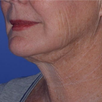 65-74 year old woman treated with Smart Lipo for Loose Neck Skin after 3154218