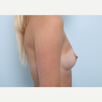 Breast Augmentation before 3345942