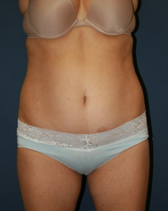 38 Year Old Female Treated with Smartlipo before 1025134