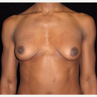 32 year old woman with asymmetry treated with Breast Augmentation before 3092536