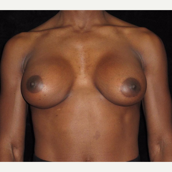 32 year old woman with asymmetry treated with Breast Augmentation after 3092536