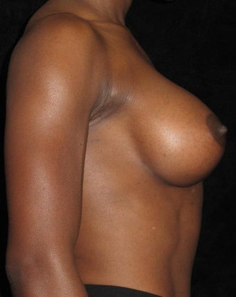 32 year old woman with asymmetry treated with Breast Augmentation 3092536